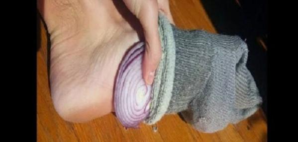 Voici pourquoi vous devez mettre de l'oignon dans vos chaussettes tous les jours