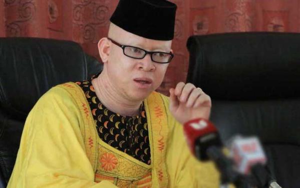 Isaac Mwaura premier député kenyan albinos veut faire changer les mentalités
