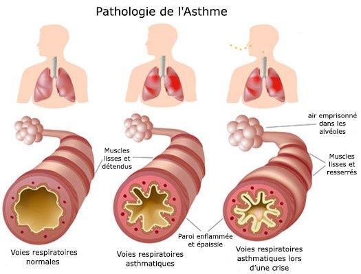 Des remèdes maison pour l'asthme