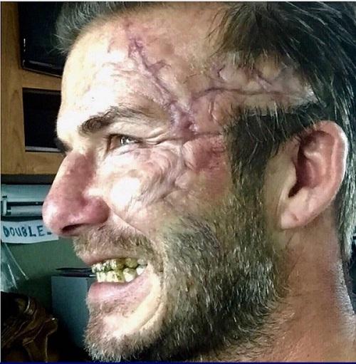 Qu'est-il arrivé à David Beckham?