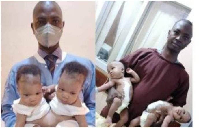 Nigeria : des jumelles siamoises séparées avec succès