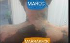 MAROC: une sénégalaise ébouillantée témoigne