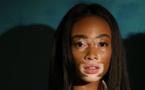 Vitiligo, la maladie qui décolore la peau